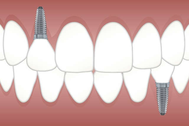Dental implants in Florissant, MO