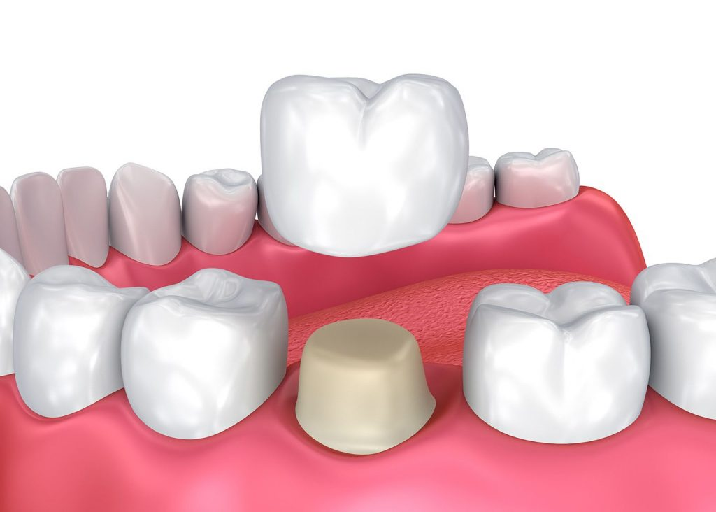 Dental Crowns: The All-In-One Solution For Your Damaged Teeth