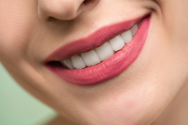 To Whiten Or Not?: Benefits and Risks of Teeth Whitening