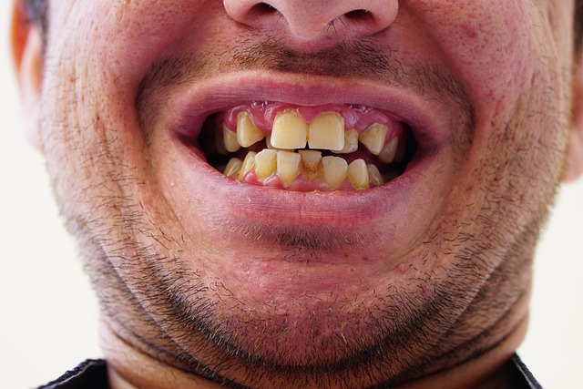 What Makes Crooked Teeth A Serious Health Risk?