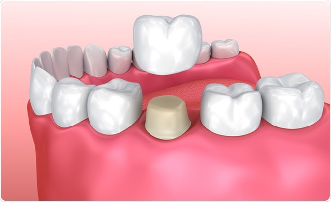 How Do Dental Crowns Work?