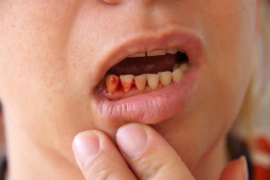 Periodontal Disease: What Are The Early Warning Signs