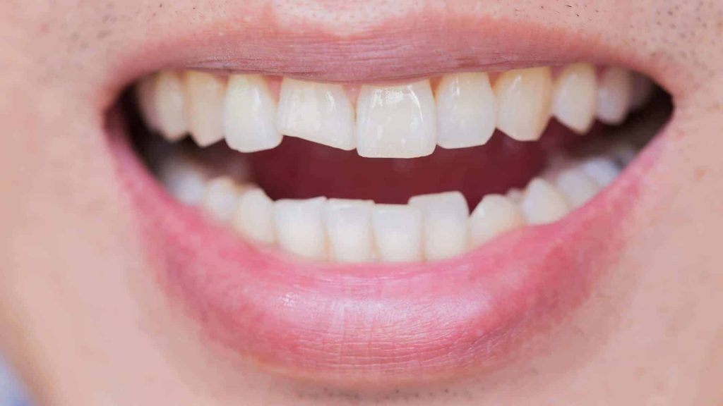What Are The Risks Of Leaving Your Chipped Tooth Untreated?