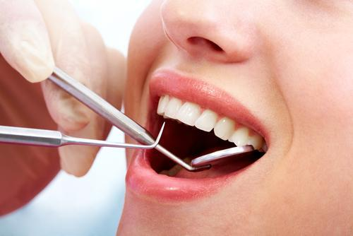 types of dental cleanings and why you need them