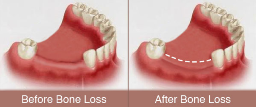 How To Slow Down Bone Loss In Teeth